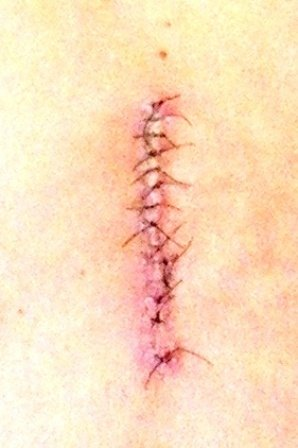 scar of my back surgery